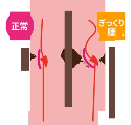 ぎっくり腰のプロセス