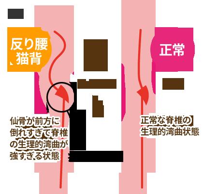 椎間板ヘルニアのメカニズム1