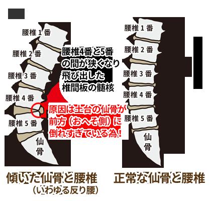 椎間板ヘルニアのメカニズム2